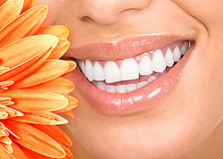 Teeth Whitening Monrovia CA - Healthy Life Dental